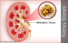 Stones form in the kidney - and as they move through the system they hurt like a bugger