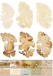 Normal brain vs. chronic traumatic encephalopathy