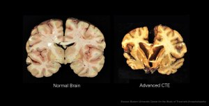 Brain injury vs regular brain
